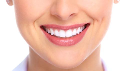 Kết quả hình ảnh cho dòng răng sứ được lựa chọn nhiều nhất
