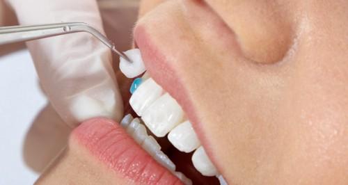 Dịch vụ bọc răng sứ thẩm mỹ và những điều bạn chưa biết