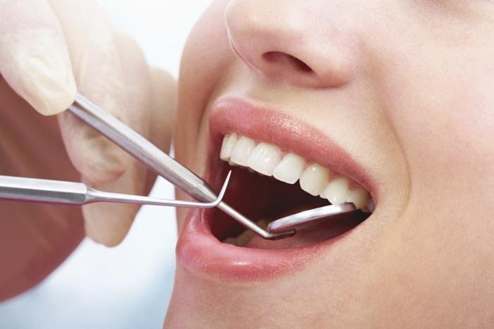 Kết quả hình ảnh cho Thời gian hoàn thành quy trình bọc răng