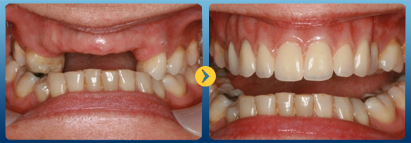 Những nguy hiểm khi làm cầu răng sứ thẩm mỹ