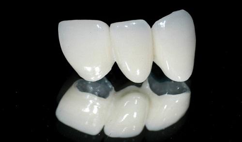 Kết quả hình ảnh cho răng sứ kim loại