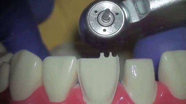 Kết quả hình ảnh cho Giải pháp mài răng cửa bị hô