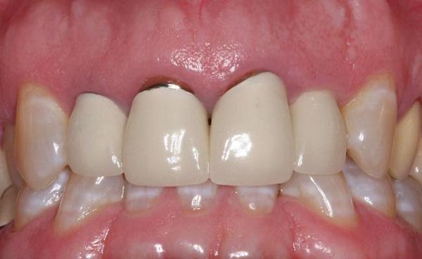 Kết quả hình ảnh cho Nếu bạn nhận thấy nướu răng giữa răng của bạn