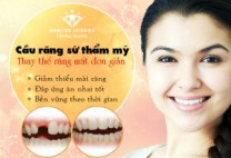 Bọc răng sứ đủ đường cười: Lựa chọn hàng đầu của KH hiện nay