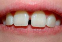Chỉnh răng hô hiệu quả – nhanh chóng với bọc răng sứ thẩm mỹ