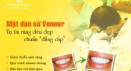 Mặt dán sứ Veneer siêu mỏng – Răng đẹp tự nhiên, không cần mài răng