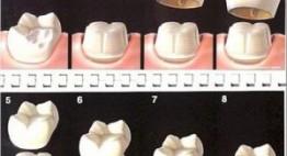 ⌈UPDATE⌉ Bọc răng sứ giá bao nhiêu tiền? – Chi phí cho mọi dòng sứ