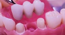 Cầu răng sứ – Giải pháp tái sinh cho các răng đã mất nhanh chóng