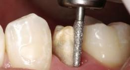 [Giải đáp] – Những lưu ý phải đọc để biết mài răng có đau không?