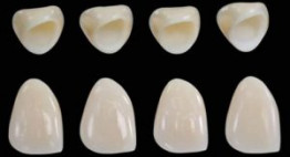 Ưu điểm của răng sứ Cercon – Điểm cộng khiến nhiều người lựa chọn