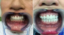 Tất tần tật những thông tin về răng sứ cercon là gì?