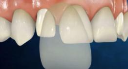 Quy trình làm mặt dán sứ Veneer chính xác cho kết quả thẩm mỹ răng như ý