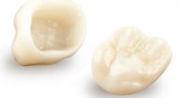 Răng sứ Cercon sử dụng được bao lâu? [Bí mật nha khoa]