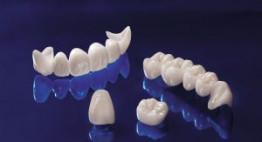Răng sứ Cercon giá bao nhiêu là hợp lý nhất hiện nay?