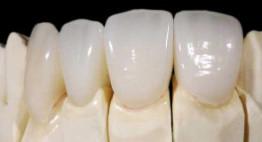 Bọc răng sứ Katana có tốt không? Hãy hiểu biết rõ rồi hãy bọc răng sứ
