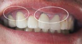 Tháo răng sứ làm lại có đau không? – Những vấn đề đáng để lưu tâm