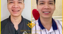 Bọc răng sứ thẩm mỹ: Cải thiện diện mạo nhanh chóng đến choáng ngợp