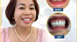 Tạm biệt hàm răng khấp khểnh, xỉn màu, vàng ố… với bọc răng sứ 2in1