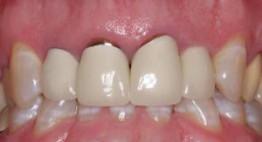 Thay răng giả bao nhiêu tiền là phù hợp hiện nay?