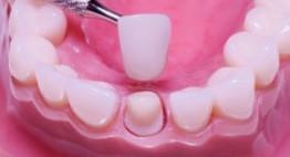 TOP những dòng răng sứ cho vẻ đẹp tự nhiên được ưa chuộng hiện nay