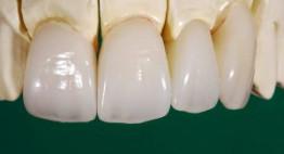 Trồng răng sứ loại nào tốt nhất và duy trì kết quả bền lâu?