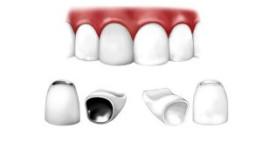 Tháo răng sứ làm lại có đau không? [Tham khảo ý kiến chuyên gia]