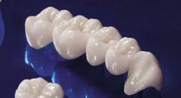 Tầm quan trọng của việc bọc răng sứ cercon cần phải biết ngay