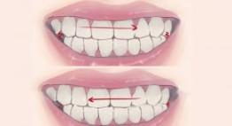 Ngủ nghiến răng là bệnh gì? Nguyên nhân nào gây ra bệnh nghiến răng?