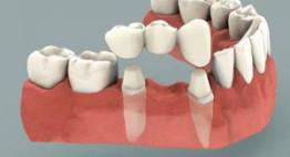 Cầu răng sứ – Lựa chọn thông minh cho hàm răng phục hình