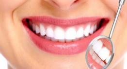 Bọc răng sứ bao lâu là NHANH NHẤT? – Nha khoa Dencos Luxury