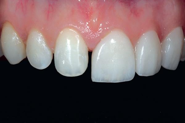 Mài nhỏ răng cửa có HẠI không? Cách phục hình hiệu quả